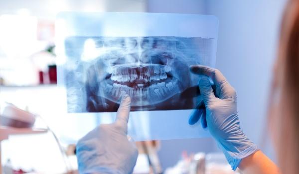 Jig para teste de microtração com colagem bilateral